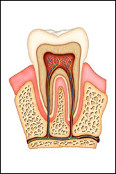 root canal Colorado Springs